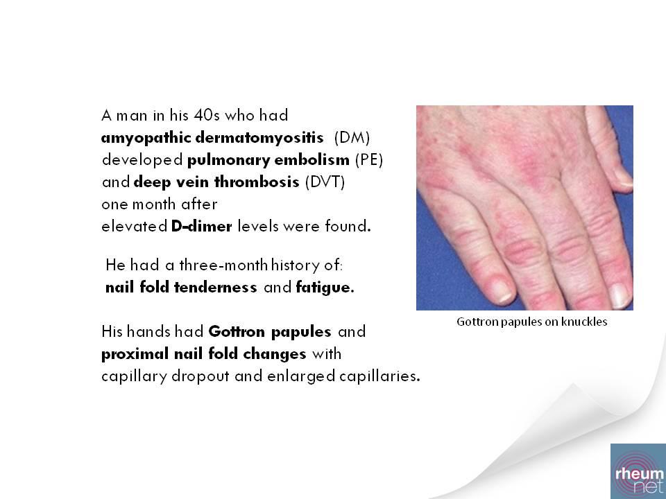 amyopathic dermatomyositis