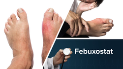 Initiation of Febuxostat Does Not Prolong Acute Gout Flares