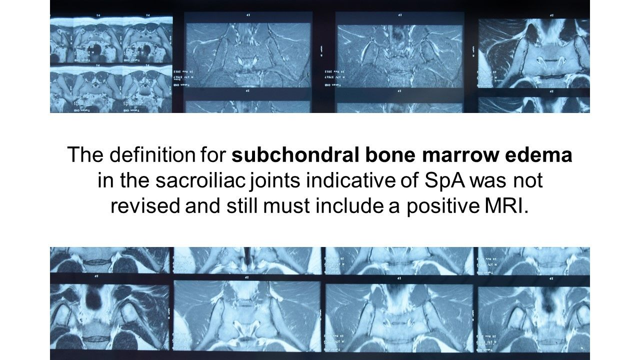 How Best to Assess Spondyloarthritis Lesions