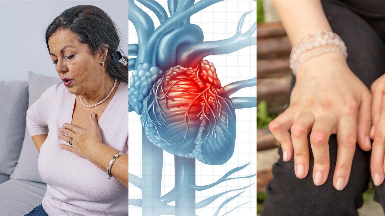 9 Key Facts About CVD in Rheumatoid Arthritis