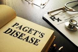New Recommendations for Treatment of Paget's Disease Released