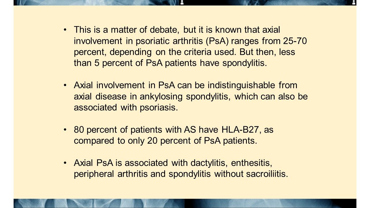 How are axial psoriatic disease and ankylosing spondylitis (AS) different?