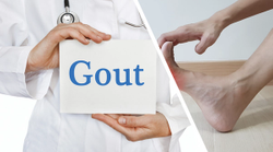 Anakinra Proves to Be an Effective Alternative Treatment for Gout Flares