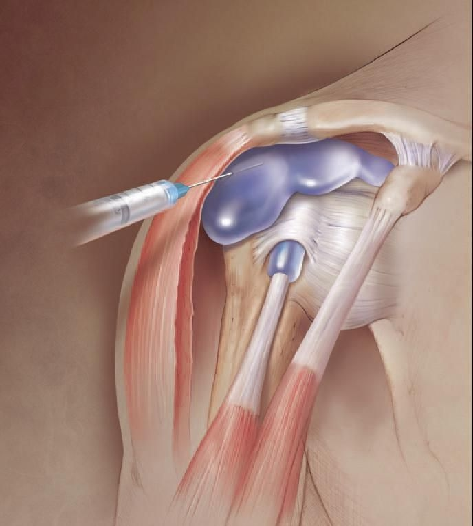 After steroid injection in shoulder effect of steroids on muscles