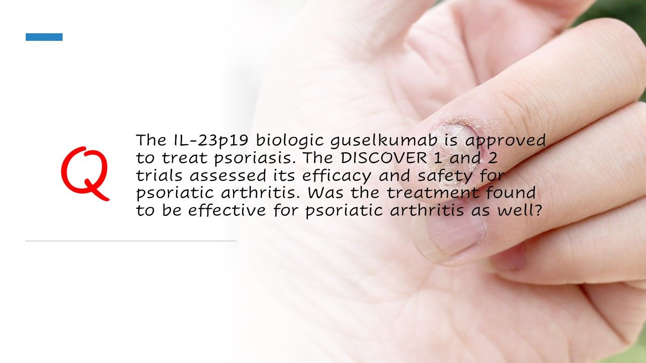 The IL-23p19 biologic guselkumab is approved to treat psoriasis.
