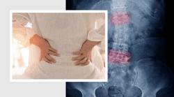 Atul Deodhar, MD, MRCP: Upadacitinib in Active Ankylosing Spondylitis