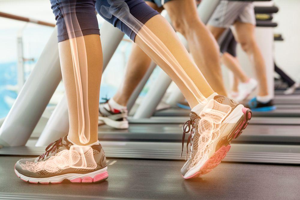 Jogging and bone health (Wavebreakmedia/Shutterstock.com)