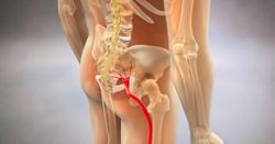Surgery May Be Best Option for Sciatica