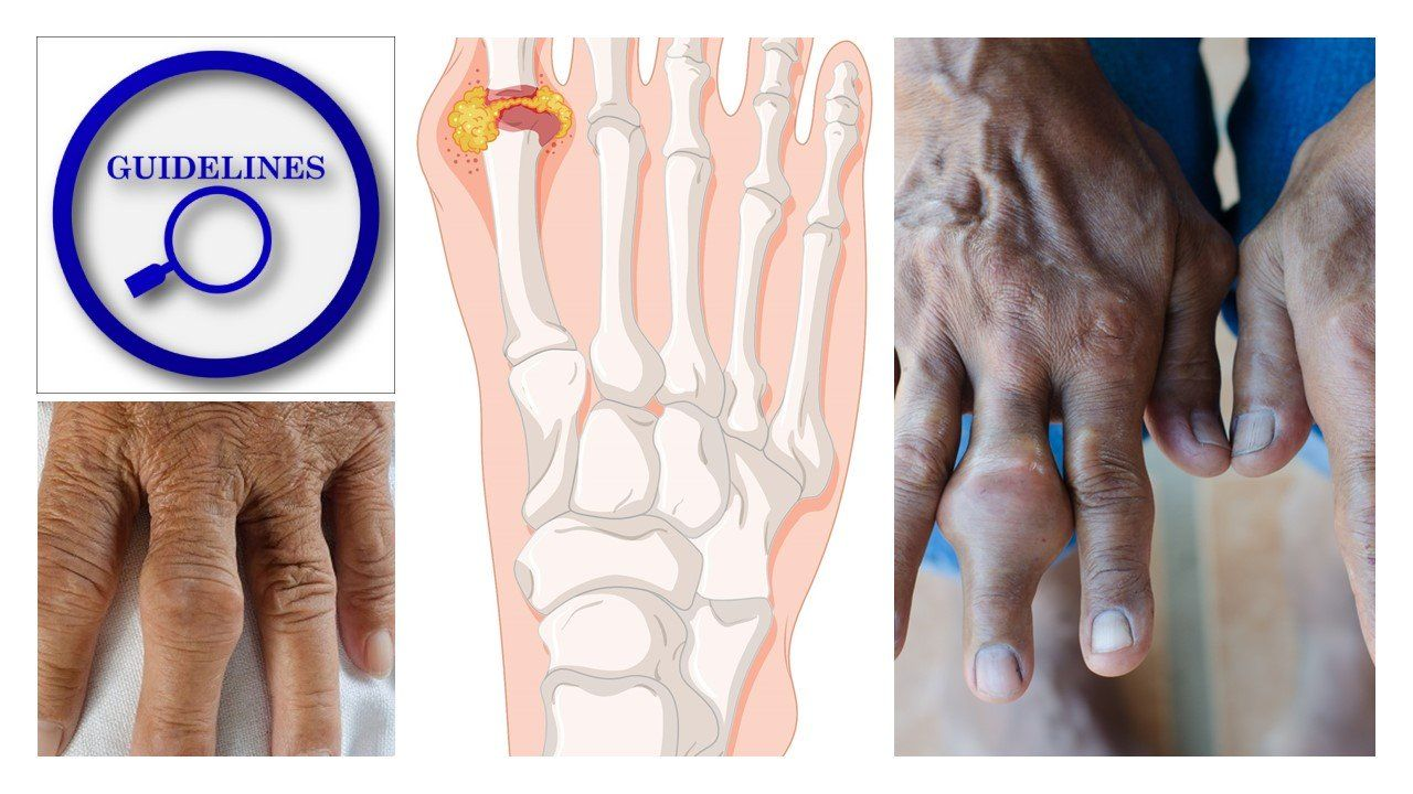 The 2020 Treatment Guidelines for Gout