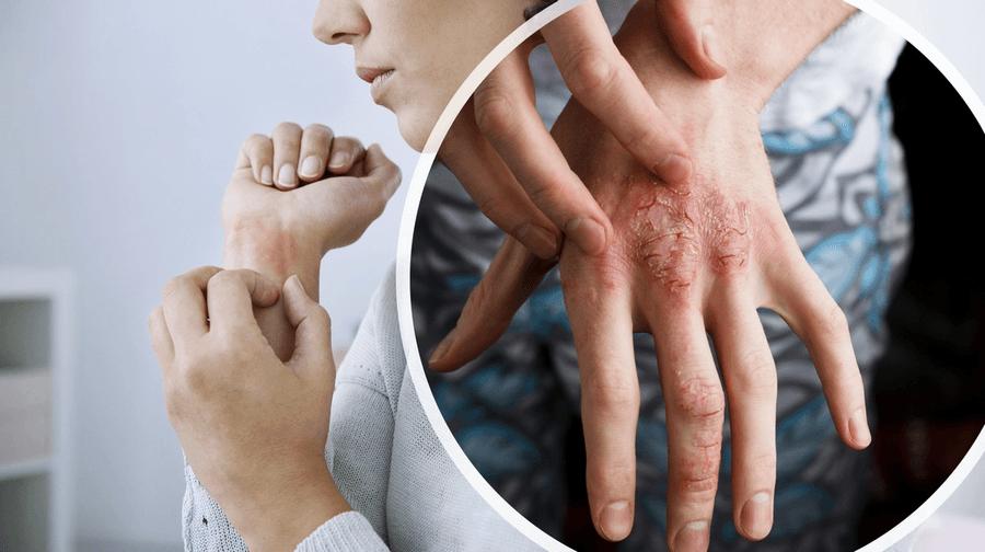Clinical Updates in Psoriatic Arthritis