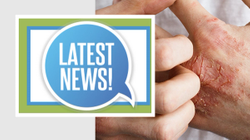 Rheumatology Network's Spotlight: Clinical Updates in Psoriatic Arthritis July 2021