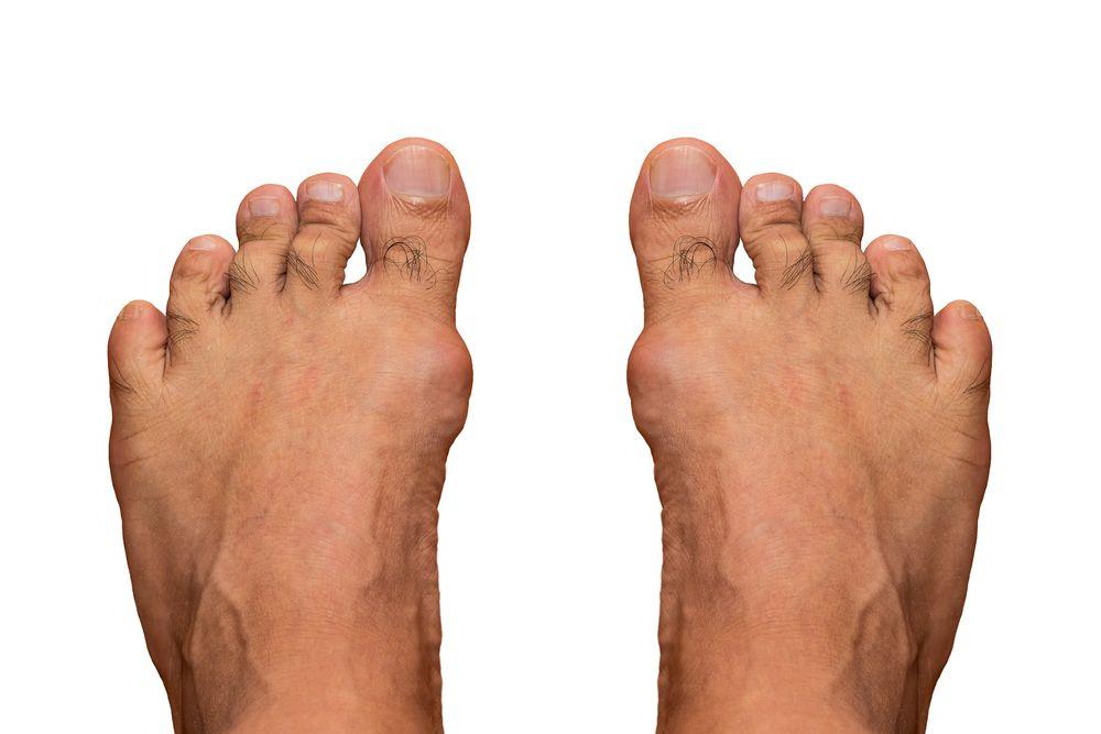 (Gout inflammation of big toe joint. ©ShutterRyder/Shutterstock.com)