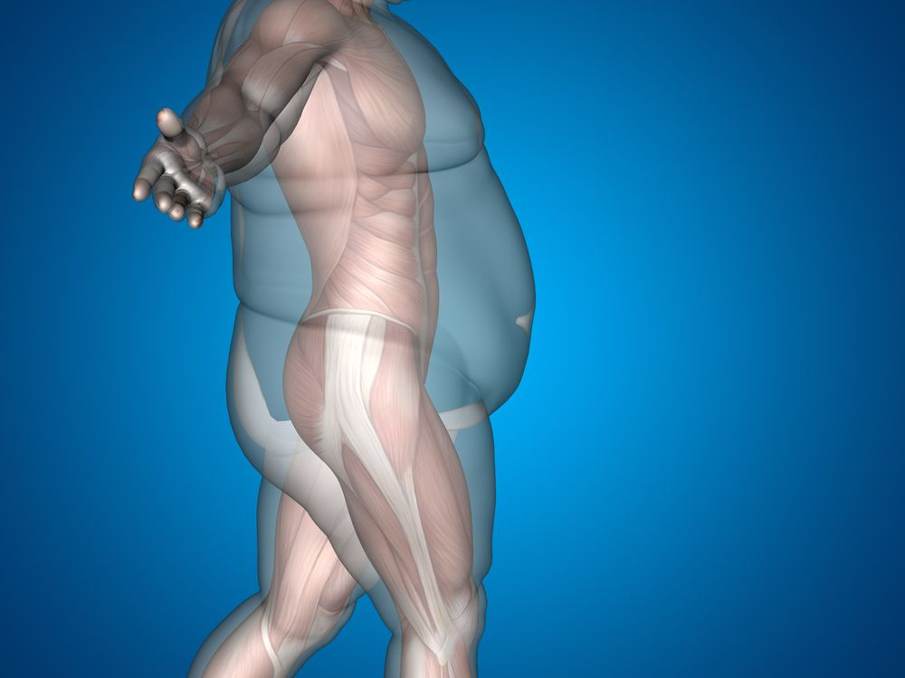 OBESITY-INDUCED ARTHRITIS IS NOT ALL THAT IT SEEMS
