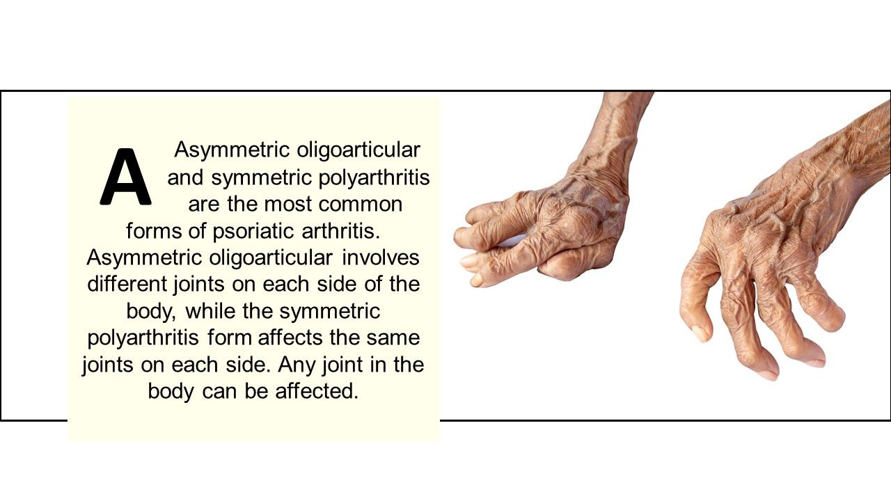 What are the two most common forms of psoriatic arthritis?