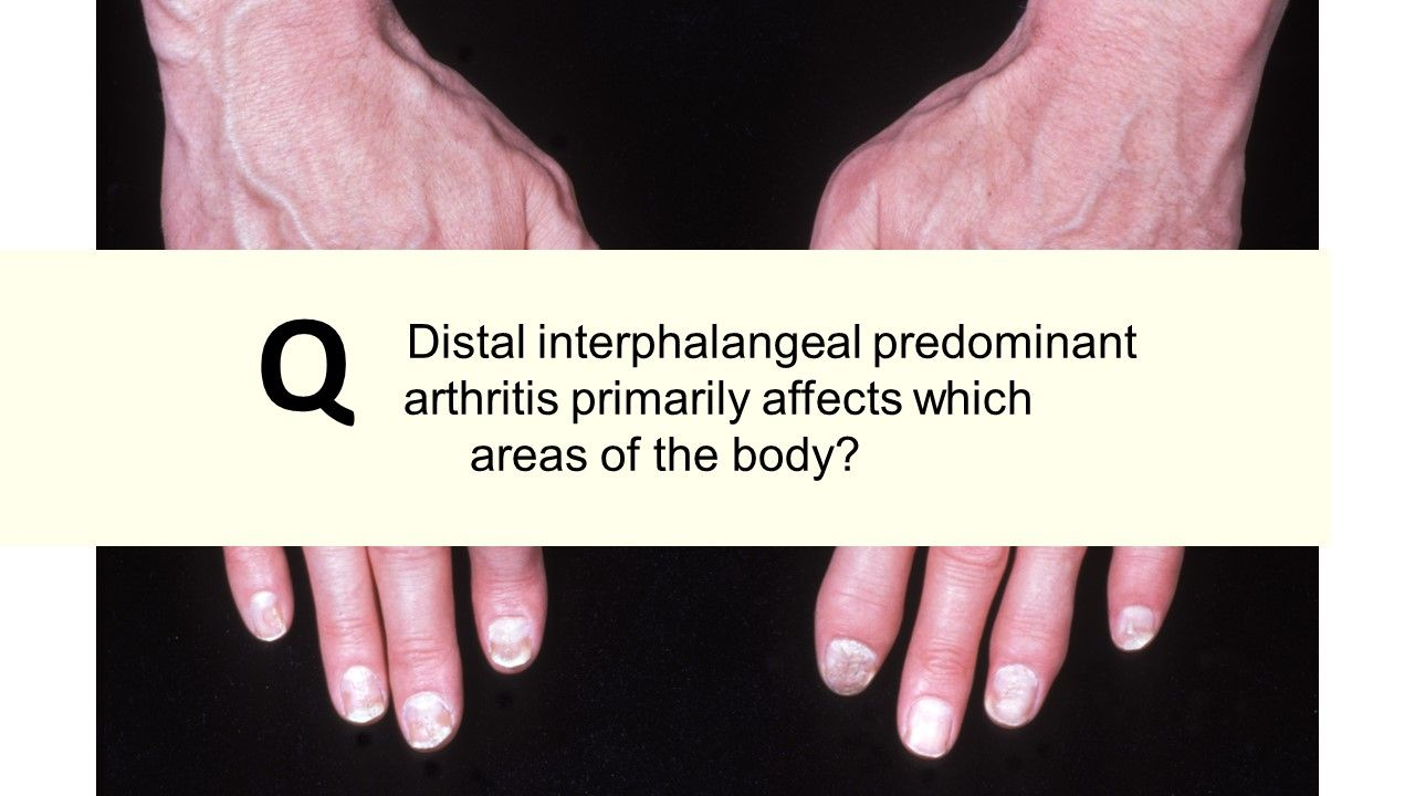 Distal interphalangeal predominant arthritis primarily affects which areas