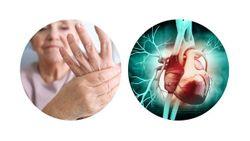 Rheumatoid Arthritis and Cardiovascular Disease Share Etiology