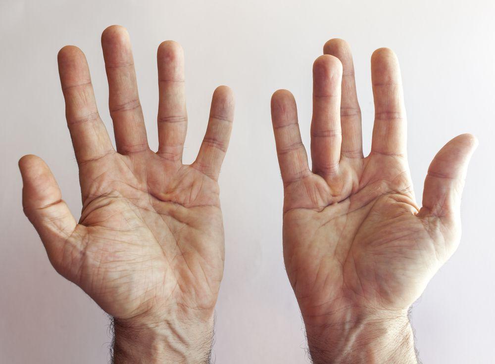 DMARDs Effect on Bone Loss in Rheumatoid Arthritis: