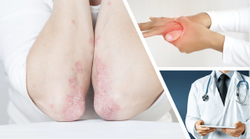 Ixekizumab Shows Benefit in Patients With Psoriatic Arthritis and Inadequate TNFi Response