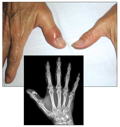 A 45 Year Old Woman With Acute Thumb Pain