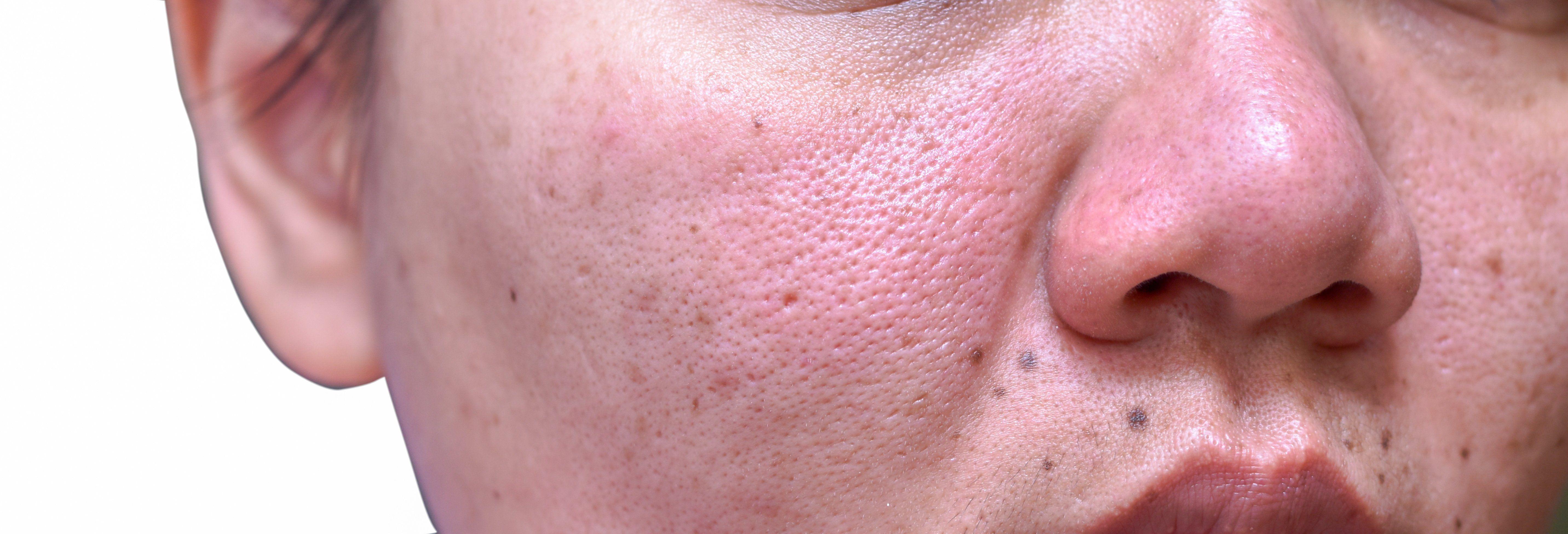 Lupus Renal Disease Mortality Rates Dip Rheumatology Network