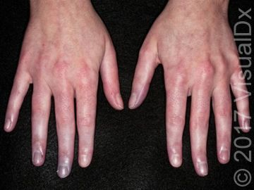 Clinical quiz cold fingers