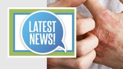 Rheumatology Network's Spotlight: Clinical Updates in Psoriatic Arthritis