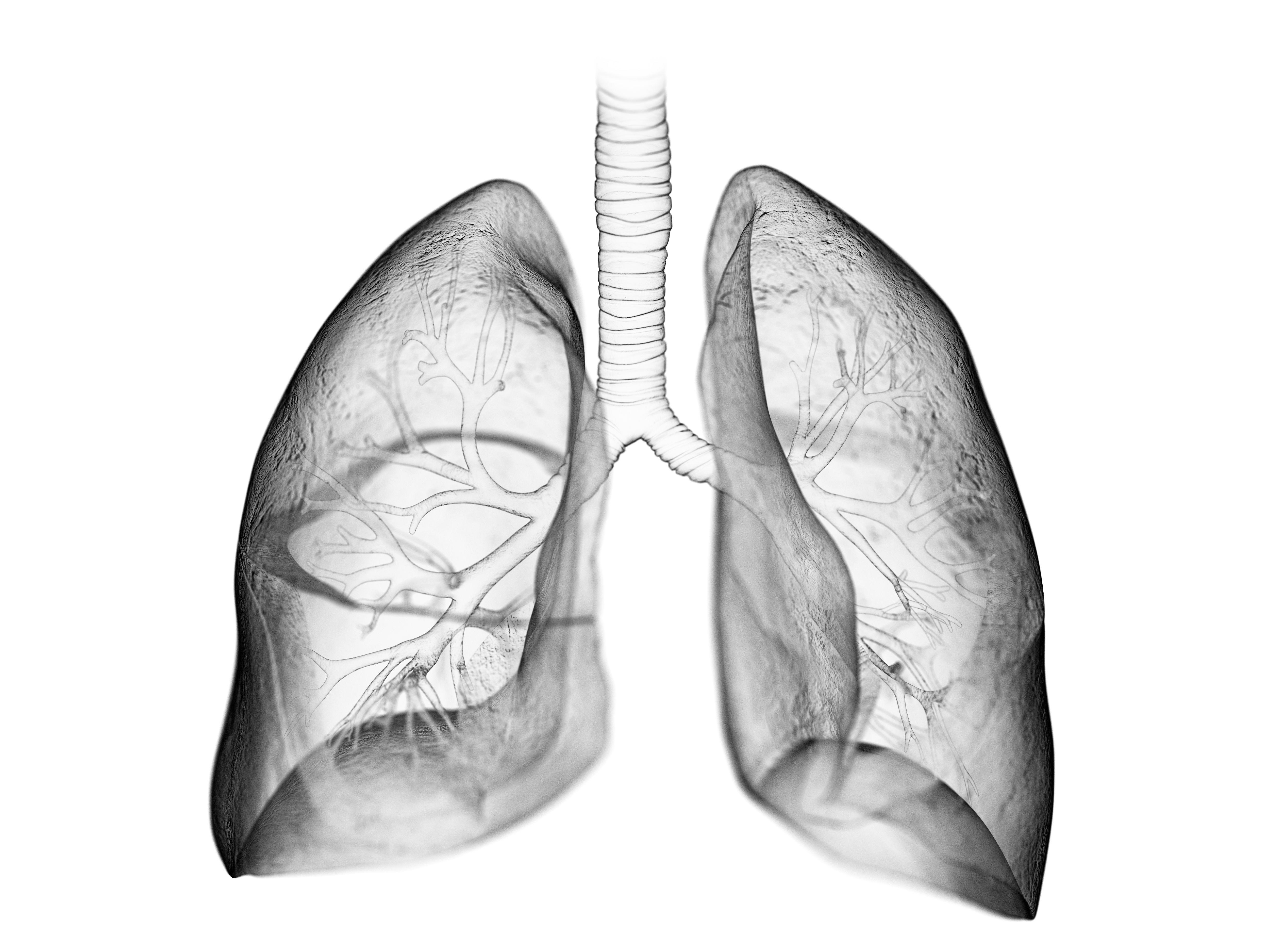COPD Triples Mortality Risk in RA: