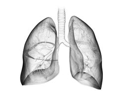 Ninfetanib Improves and Stabilizes Lung Function in Systemic Sclerosis