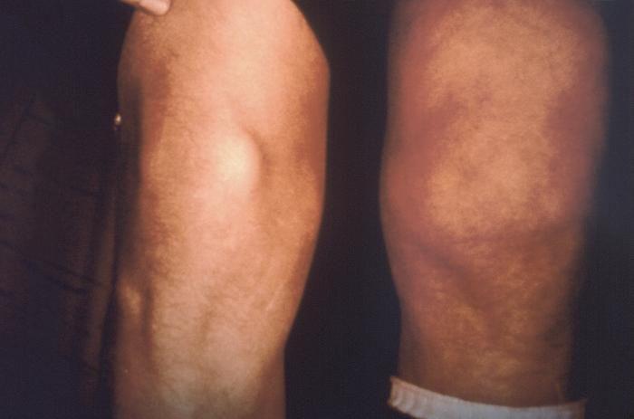 Lyme disease patient, arthritic changes to knee. ©CDC