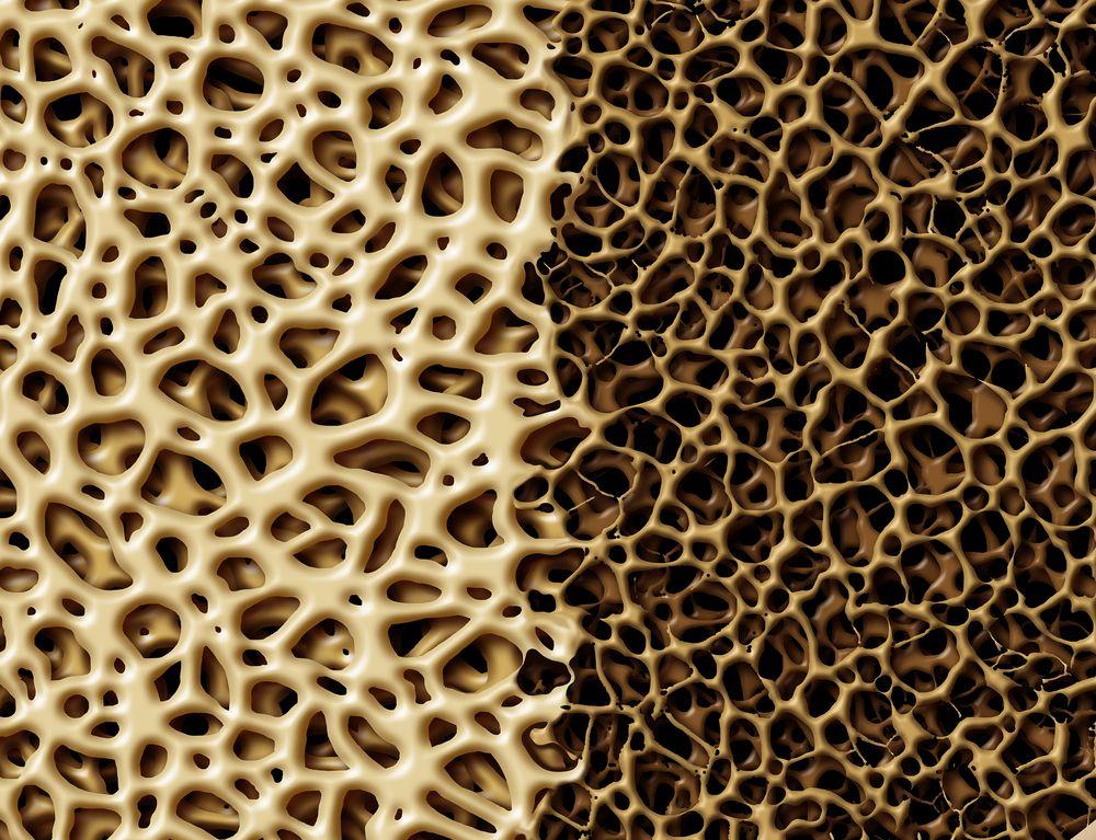 Bone with osteoperosis (©Lightspring/Shutterstock.com)