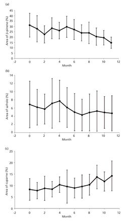 Using GC–MS to Observe Changes in the Essential Oil Concentrations in Cedar Tree (Juniperus virginiana) Leaves During a Drought Year