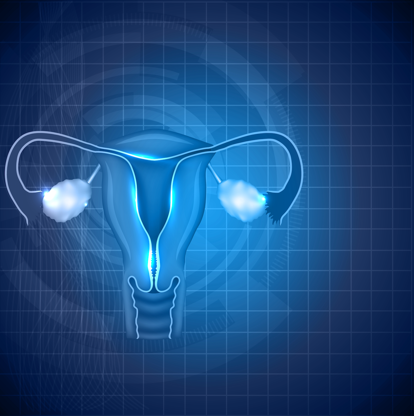 Frontline Parp Maintenance Study In Advanced Ovarian Cancer Ready To Start Treatment Targeted Oncology Immunotherapy Biomarkers And Cancer Pathways