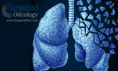 Best options for treating nsclc