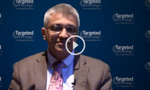Analyzing the Outcomes With Different Treatment Techniques in Myeloma