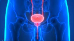 Adding eganelisib to nivolumab shows survival benefit in bladder cancer