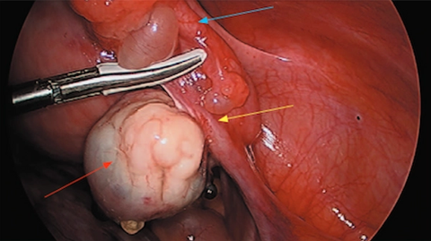 Opportunistic salpingectomy in female urologic surgery
