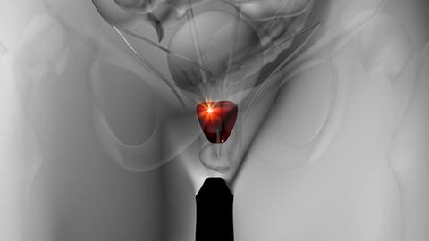 DeMISTifying less-invasive solutions for BPH