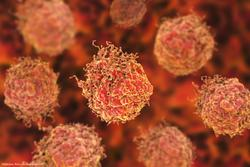 PSMA targeted CAR T-cell therapy shows antitumor activity in mCRPC