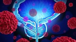 Pivotal data published for sacituzumab govitecan in bladder cancer