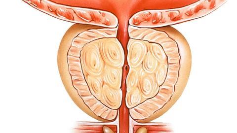 Photoselective vaporization of the prostate found safe, durably effective