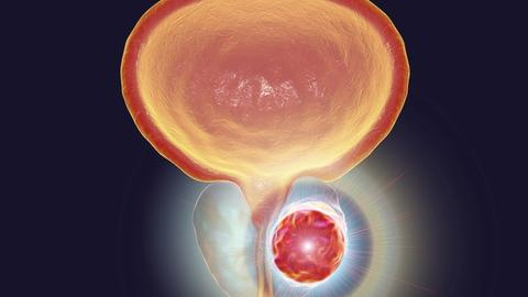 Antiandrogens may increase mortality risk in men with CVD