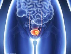Urologists must remain vigilant regarding post-BCG infection