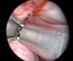 Placement of urethral lift (UroLift) under topical anesthesia