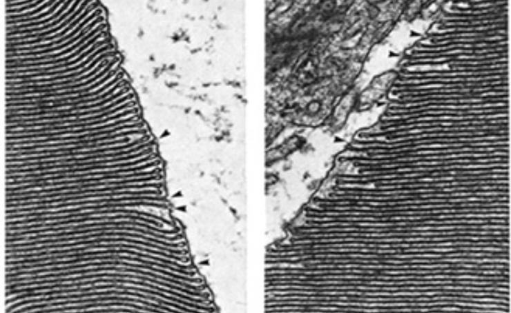 Lamprey stackable membranes scan.