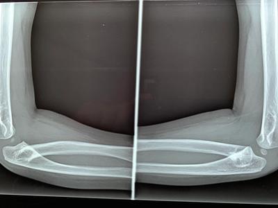 Unión radio cúbito proximal vista lateral
