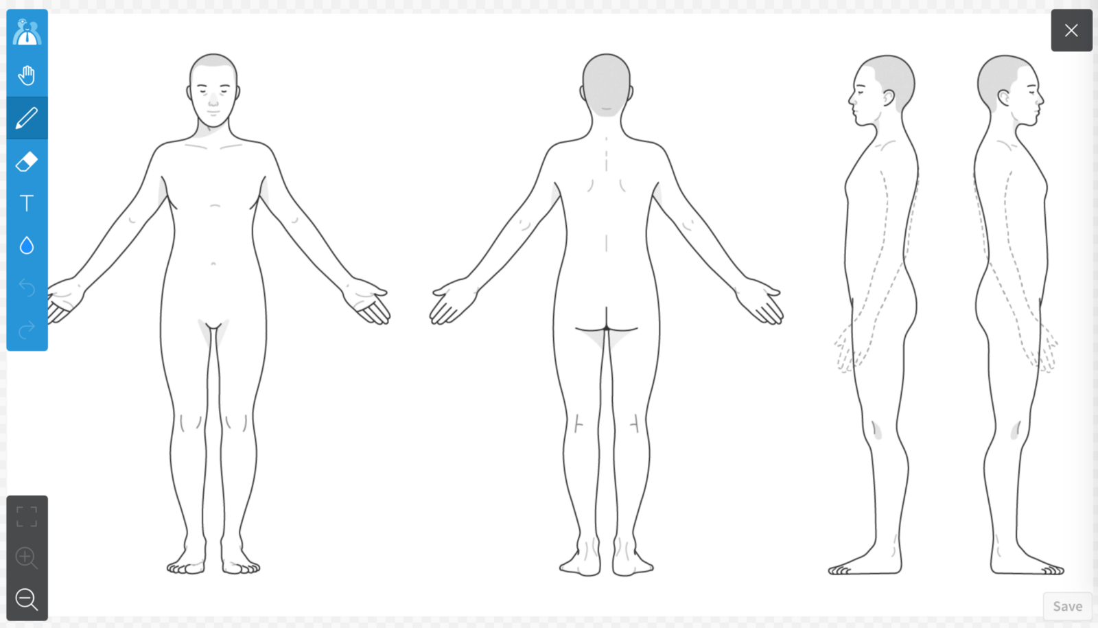 A body chart before markup.