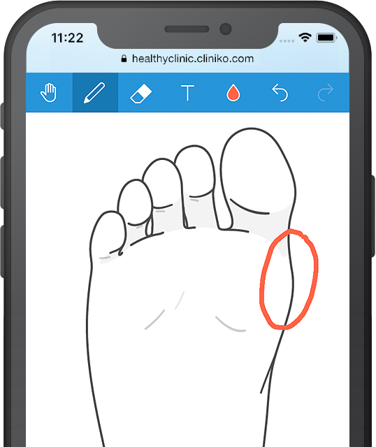 Mobile phone displaying a foot diagram in Cliniko.