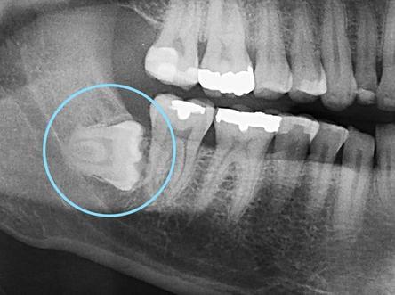 Radiographie d'une dent de sagesse qui se positionne à l'horizontale.
