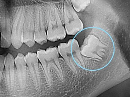 Radiographie d'une dent de sagesse qui se positionne de manière mésio-angulée, soit en biais vers votre autre dent du fond.