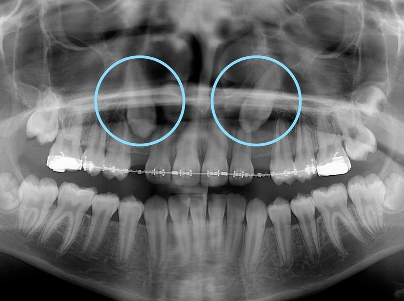 Radiographie panoramique présentant des canines supérieures plus haute que les autres dents.
